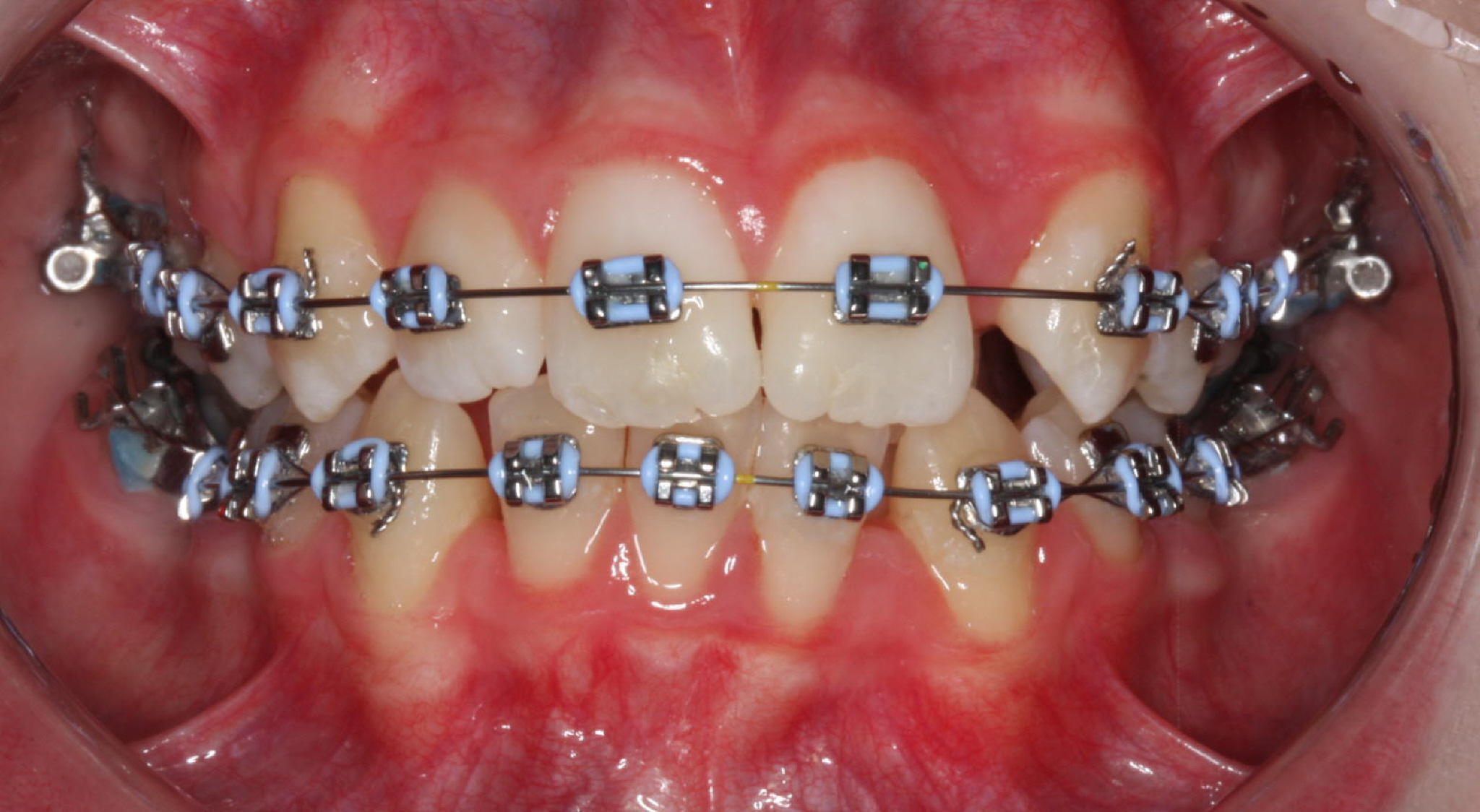Fixed braces image