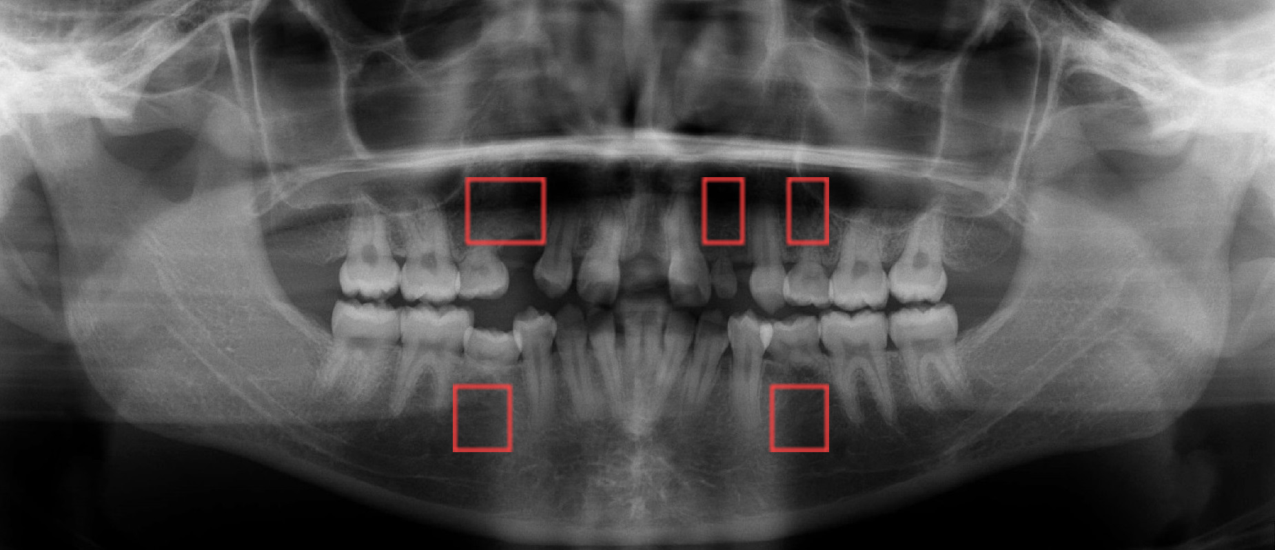 X-ray showing missing adult teeth image