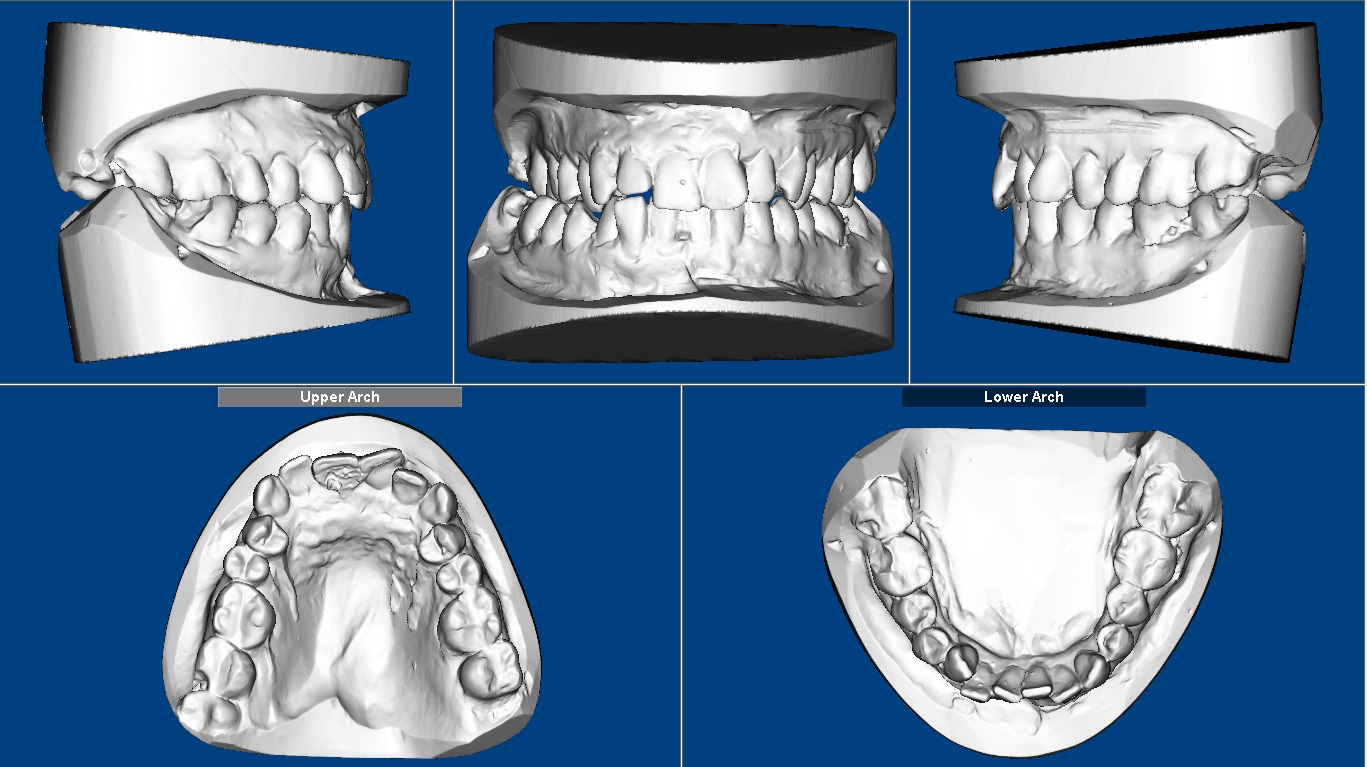 Digital dental models image